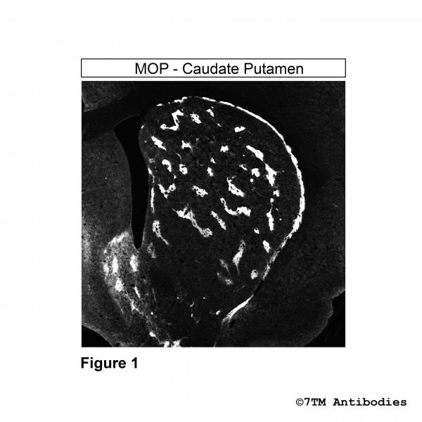 Immunohistochemical identification of µ-Opioid Receptor in caudate putamen.